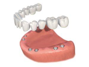 Zahnloser Kiefer | Quelle: Zahnarztpraxis Dres Pfau, Dr. Heinzelmann