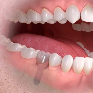 ©Straumann - implant-borne_single-tooth_treatment_04