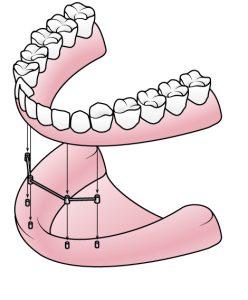 Zahnersatz für den zahnlosen Kiefer | Zahnarzt Rottweil