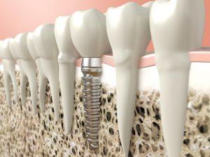 Schnelle Versorgung nach Zahnverlust: Sofortimplantation | Zahnarzt Rottweil