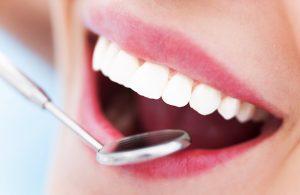 Prophylaxe für schöne und gesunde Zähne | Zahnarzt Rottweil