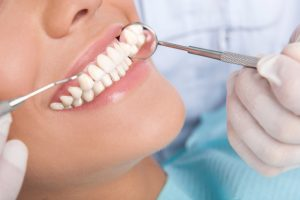 Parodontitis - Wir behandeln Sie erfolgreich und nachhaltig | Zahnarzt Rottweil
