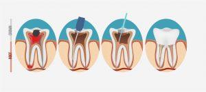 Zahnerhalt: Moderne Wurzelbehandlung mit der Lupenbrille | Zahnarzt Rottweil