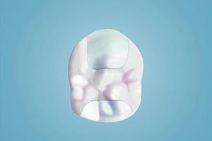 Unsere laborgefertigten Füllungen sind lange haltbar und verschließen auch größere Zahndefekte zuverlässig.